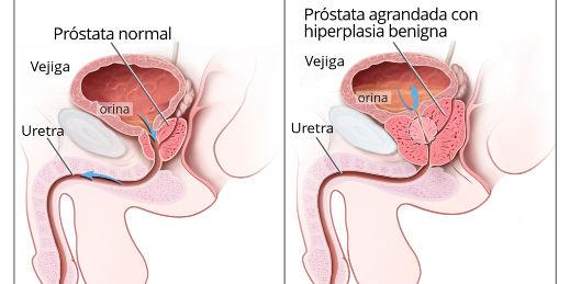 tumor benigno de la próstata psat